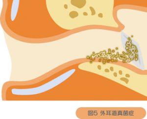 外耳道真菌症