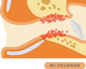 びまん性外耳炎
